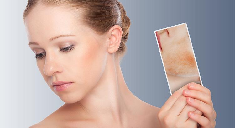 manchas-en-la-piel-Farmacia_María_Mullor_farmaciamariamullorlosmolinos.es_farmactitud.es
